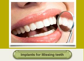 Dental Implants Colorado Springs Aspen Ridge Dental Care