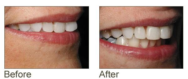 Six Month Smiles Colorado Springs Aspen Ridge Dental Care